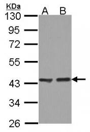 GTX114229 - ACAA1