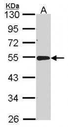 GTX114234 - ACP2 / LAP