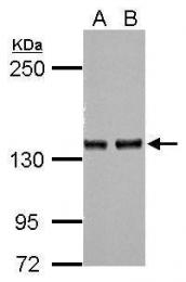 GTX114238 - Adenylate cyclase type 7