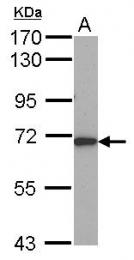 GTX114245 - ALAS1