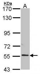 GTX114250 - ALPPL2