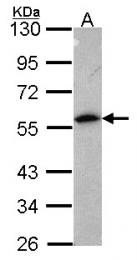 GTX114255 - Annexin A11 / ANXA11
