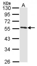 GTX114256 - Annexin A11 / ANXA11