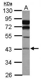 GTX114267 - Acid ceramidase
