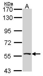 GTX114274 - ALDH7A1 / ATQ1