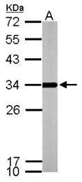 GTX114275 - ATP synthase subunit gamma