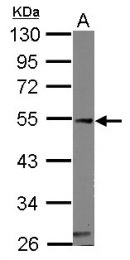GTX114304 - Calsequestrin-1