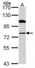 GTX114337 - CPT1A / CPT1-L