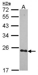 GTX114340 - Cysteine-rich protein 2