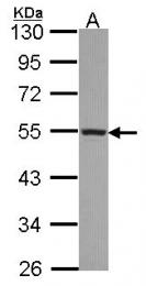 GTX114353 - CYP4A11