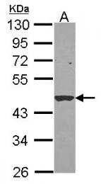GTX114377 - SERPINB1