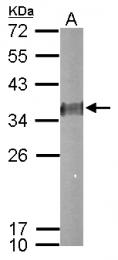 GTX114391 - Esterase D (ESD)