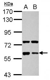 GTX114405 - Glypican-5 / GPC5
