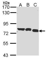 GTX114421 - Glycyl-tRNA synthetase