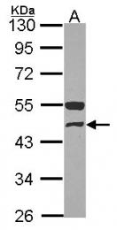 GTX114427 - GCD / GCDH