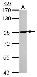 GTX114428 - KAT2A / GCN5L2