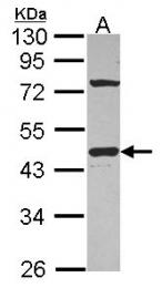 GTX114437 - G protein alpha inhibitor 1