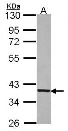 GTX114442 - Transducin beta chain 1 / GNB1