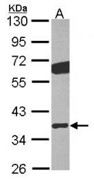 GTX114443 - Transducin beta chain 2 / GNB2