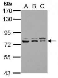 GTX114455 - GTF2F1 / RAP74