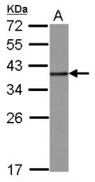 GTX114475 - hnRNP-A2/B1 / HNRNPA2B1