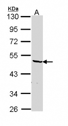 GTX114476 - hnRNP-F / HNRNPF