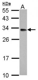 GTX114480 - 17-beta-HSD3 / HSD17B3