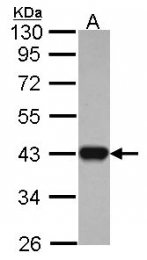 GTX114486 - Isocitric dehydrogenase alpha / IDH3A
