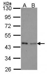 GTX114502 - IVD