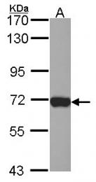 GTX114524 - Plastin 2 / LCP1