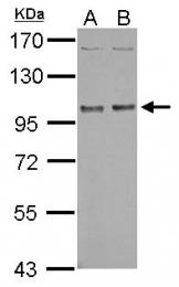GTX114539 - NBR