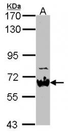GTX114568 - NAB2