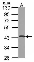 GTX114572 - NDUFA10