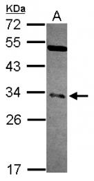GTX114585 - NFYB