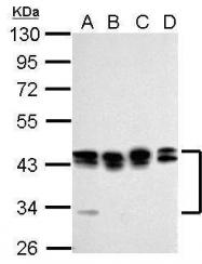 GTX114617 - PCBP2 / hnRNP-E2
