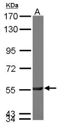 GTX114634 - PGM3