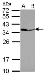 GTX114651 - Pyrophosphatase 1 / PPA1