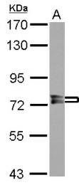 GTX114652 - PPEF1