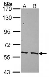 GTX114660 - PPP3CC / CALNA3