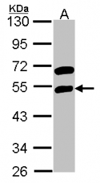 GTX114710 - RBMS1