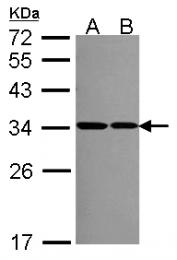GTX114734 - RPS2 / RPS4
