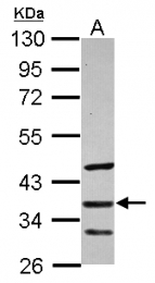 GTX114747 - SFRP5