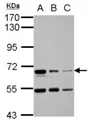 GTX114793 - SPINT1 / HAI1