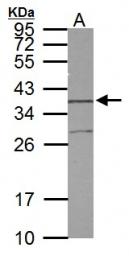 GTX114807 - Syntaxin 5 / STX5