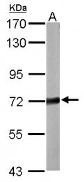 GTX114808 - STXBP1 / UNC18A