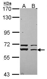GTX114809 - STXBP1 / UNC18A