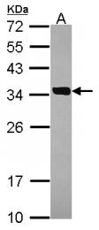 GTX114814 - SULT2A1 / HST