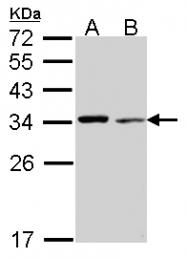 GTX114851 - Tropomyosin-4 (TPM4)