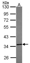 GTX114858 - Thiosulfate sulfurtransferase (TST)