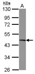 GTX114873 - UQCRC2 (Complex III subunit Core 2)